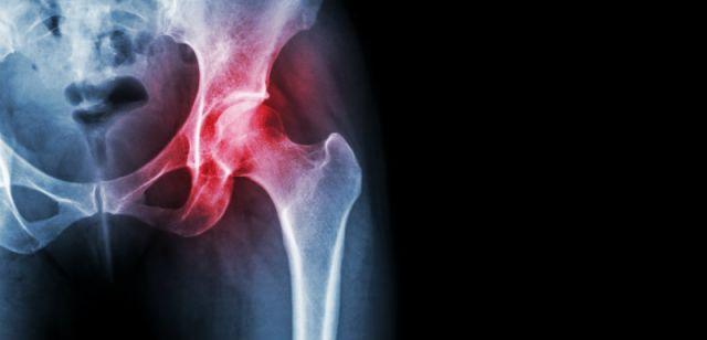 Traitement naturel de l'arthrose
