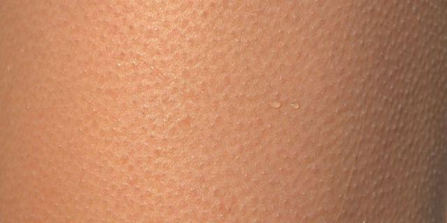 Lutter contre la sécheresse cutanée et la peau sèche
